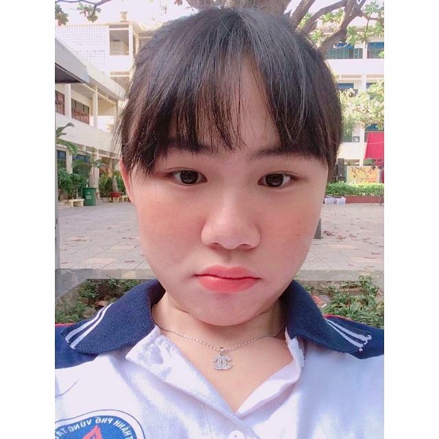 Hành trình trị mụn thành công của cô gái ở chùa Hương