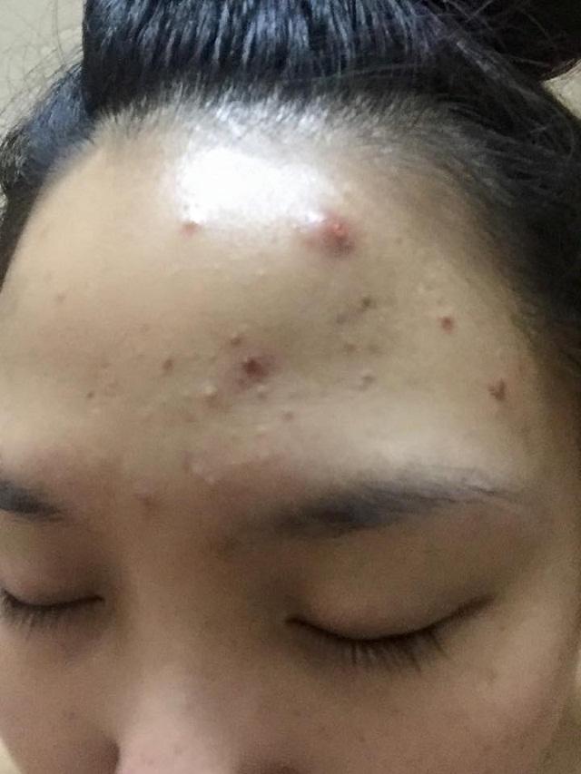 Làn da đầy mụn và vết thâm sau điều trị thất bại thuốc tây