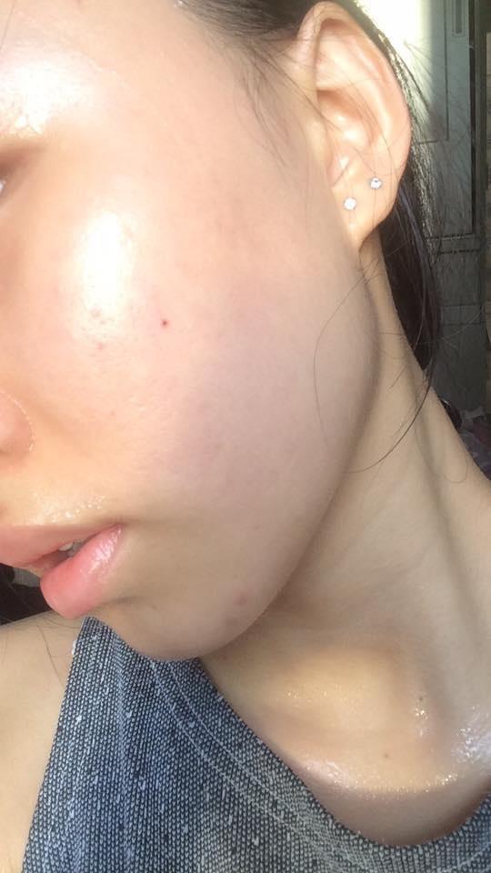 Làn da của cô nữ sinh đã hết sạch mụn và mịn màng mà không hề để lại bất cứ một vết sẹo lõm, sẹo rỗ nào