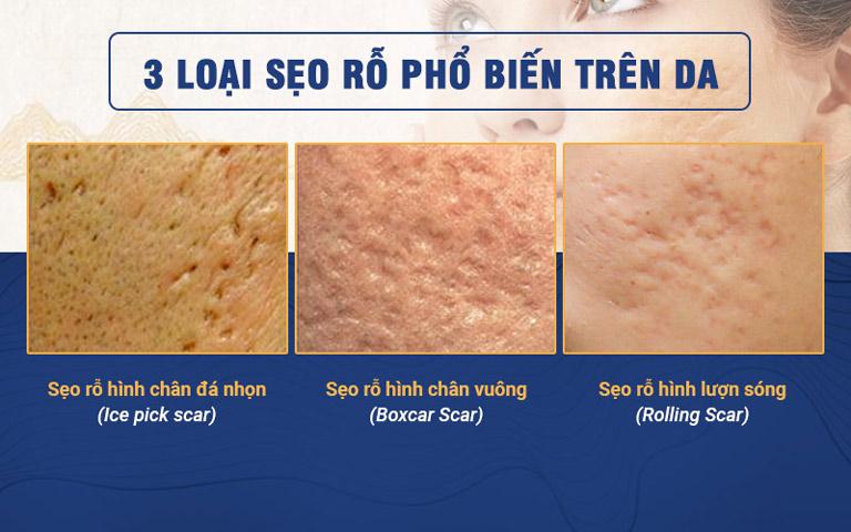 Hình ảnh 3 loại sẹo rỗ phổ biến trên da
