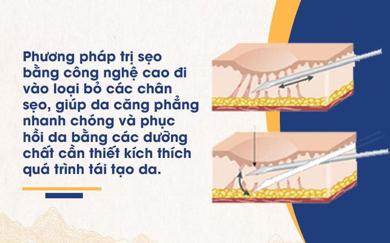 Phương pháp bóc tách đáy sẹo giúp loại bỏ sẹo tận gốc và ngừa tái phát hiệu quả
