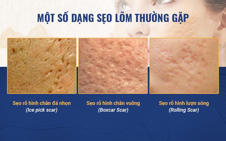 Những loại sẹo rỗ thường gặp trên da