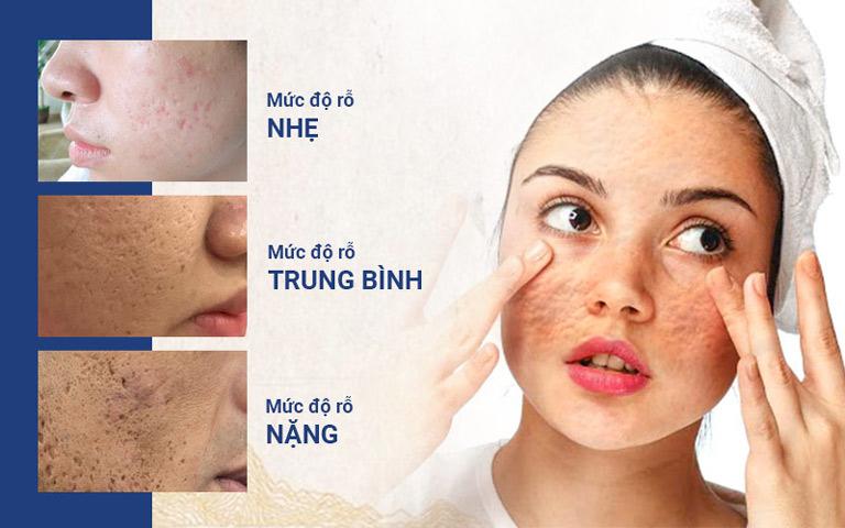 Các mức độ sẹo trên da