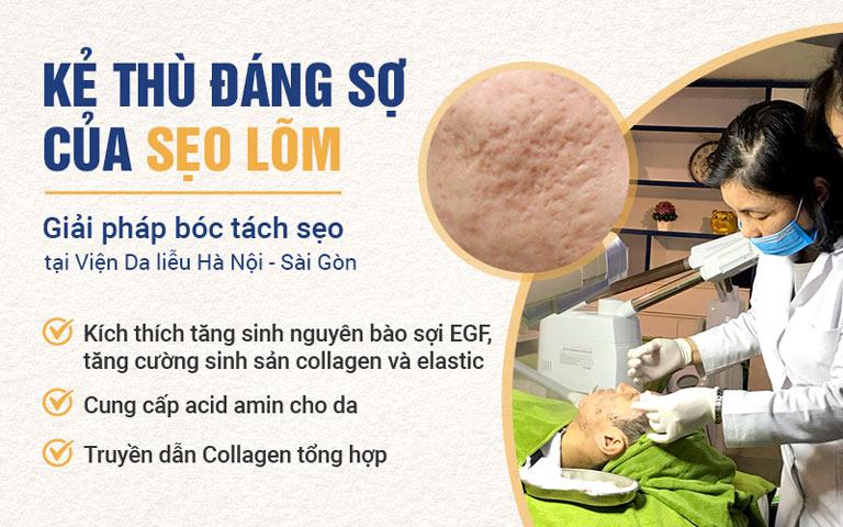 Phương pháp trị sẹo lõm cúa nhiều côn dụng, ưu điểm vượt trội