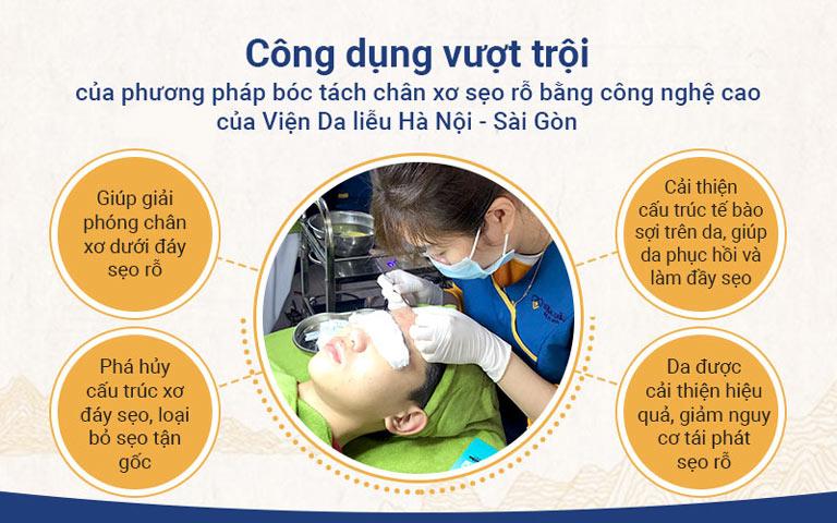 Công dụng vượt trội của phương pháp bóc tách chân xơ sẹo rỗ bằng công nghệ cao của Viện Da liễu Hà Nội - Sài Gòn