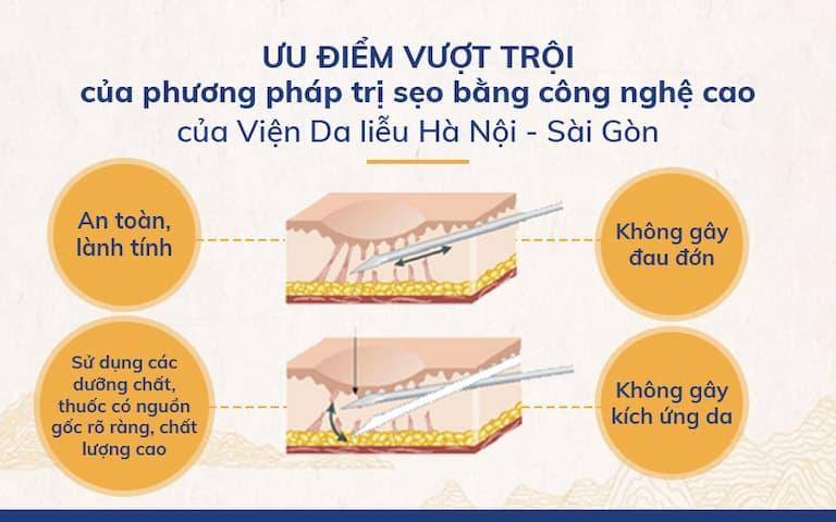 Ưu điểm vượt trội của phương pháp trị sẹo bằng công nghệ cao của Viện Da liễu Hà Nội - Sài Gòn