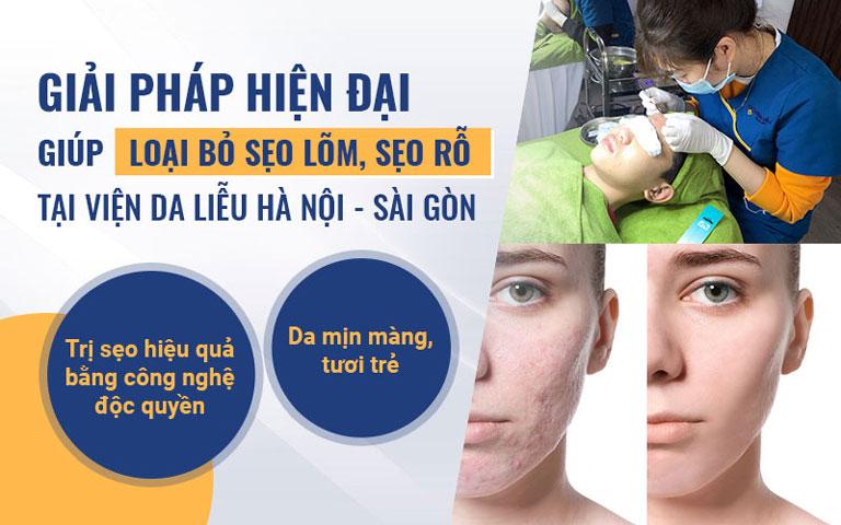 Giải pháp điều trị sẹo lõm hiệu quả nhất hiện nay tại Viện Da liễu Hà Nội - Sài Gòn