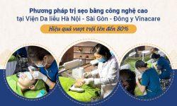 Phương pháp trị sẹo bằng công nghệ cao tại Viện Da liễu Hà Nội - Sài Gòn - Đông y Vinacare - Hiệu quả vượt trội lên đến 80%