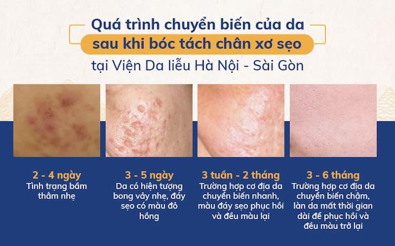 Quá trình chuyển biến của da sau khi bóc tách chân xơ sẹo tại Viện Da liễu Hà Nội - Sài Gòn