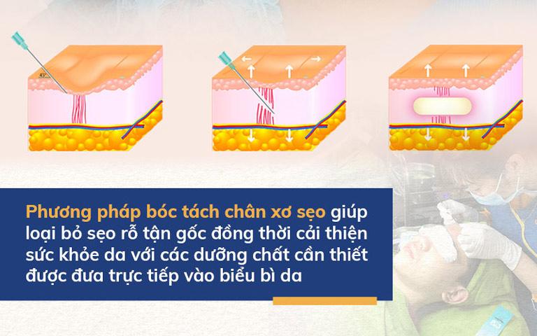 Giải pháp bóc tách chân sẹo tại Viện Da liễu Hà Nội - Sài Gòn hoạt động theo cơ chế bóc tách đáy sẹo kết hợp truyền dưỡng chất nuôi dưỡng da