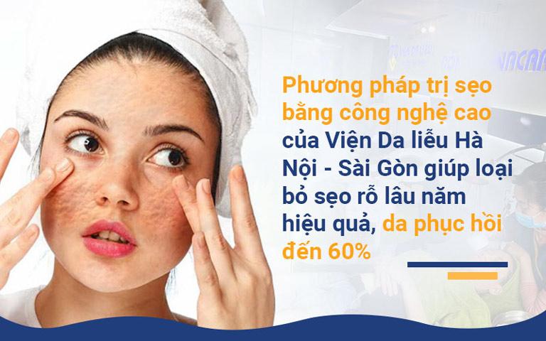 Phương pháp trị sẹo bằng công nghệ cao của Viện Da liễu Hà Nội - Sài Gòn giúp loại bỏ sẹo rỗ lâu năm hiệu quả, da phục hồi đến 60%