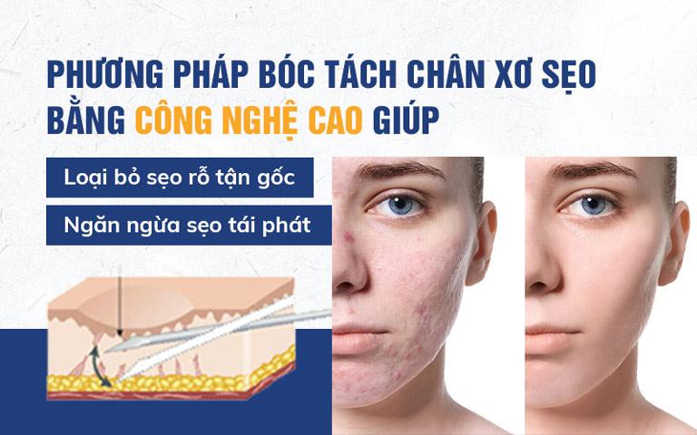 Phương pháp bóc tách chân xơ sẹo bằng công nghệ cao giúp loại bỏ sẹo rỗ tận gốc và ngăn ngừa sẹo tái phát