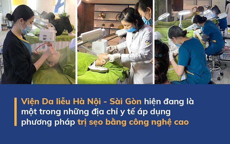 Viện Da liễu Hà Nội - Sài Gòn hiện đang là một trong những địa chỉ y tế áp dụng dụng phương pháp trị sẹo bằng công nghệ cao