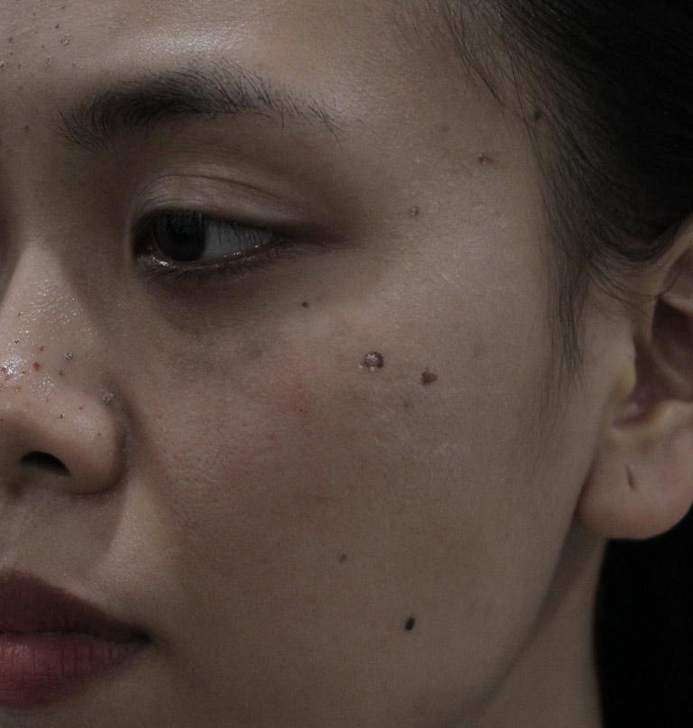 Dù đã áp dụng nhiều phương pháp khác nhau nhưng mụn trên da chị Trang vẫn dai dẳng, cứng đầu