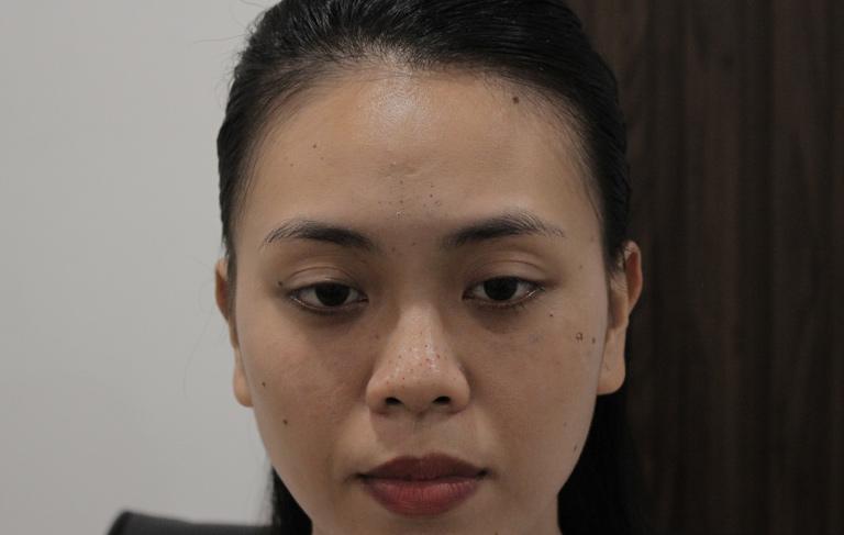 Làn da sần sùi với nhiều mụn ẩn, mụn đầu đen của chị Trang